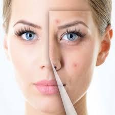 درمان خانگی مفید برای آکنه صورت