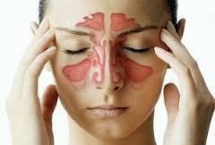 سینوزیت و درمان خانگی آن